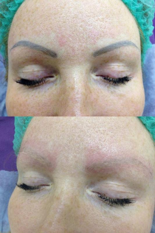 удаление татуажа губ лазером фото до и после
