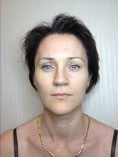 После процедуры фотоомоложения отмечается выраженный лифтинг:разглаживаются носогубные складки, межбровная область, подтягивается овал лица, уголки рта.