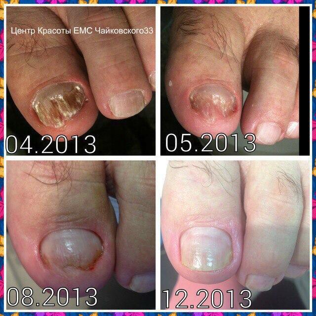 Грибок ногтей - Центр Медицинского Педикюра